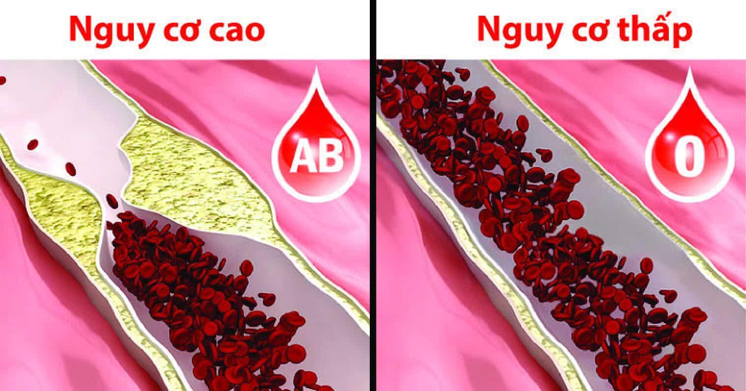 8 sự thật thú vị về nhóm máu O không phải ai cũng biết-3