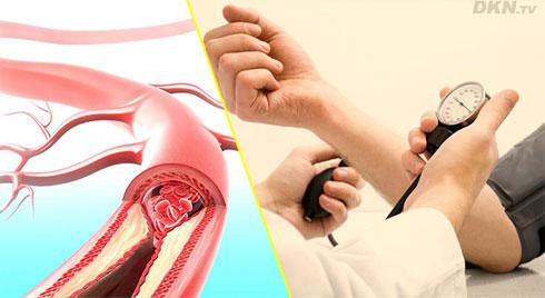 Những điều bạn nên biết về bệnh xơ vữa động mạch