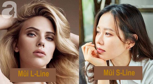 Nâng mũi cao như Tây có gì hay mà khiến nhiều phụ nữ Việt ham mê đến vậy?-4
