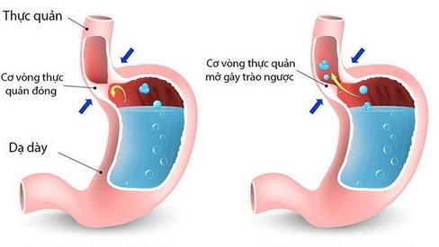 Bài thuốc trị bệnh trào ngược dạ dày - thực quản