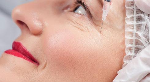Phương pháp tiêm chất làm đầy cho vùng da trũng dưới mắt