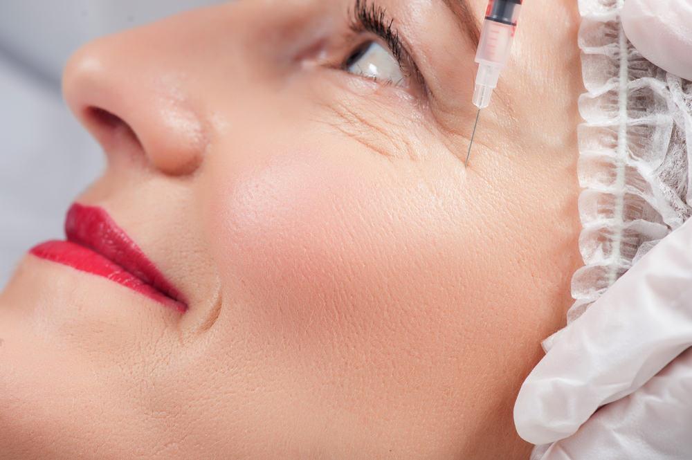 Phương pháp tiêm chất làm đầy cho vùng da trũng dưới mắt-1