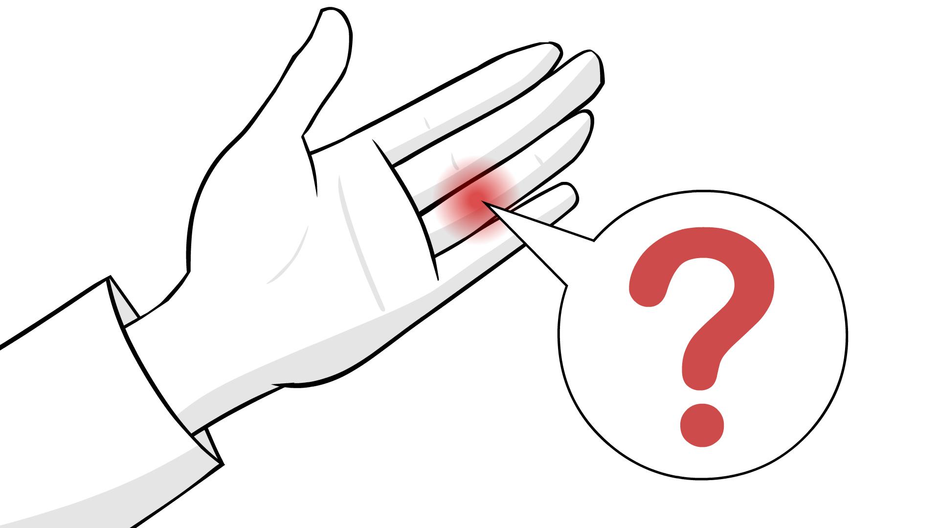 Bệnh bong gân ngón tay: Triệu chứng và cách điều trị-1