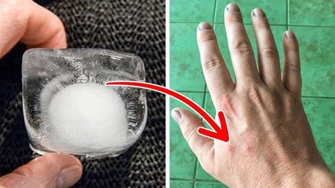 11 mẹo giảm đau, giảm sẹo, giảm căng thẳng khi dân văn phòng không có thuốc trong tay