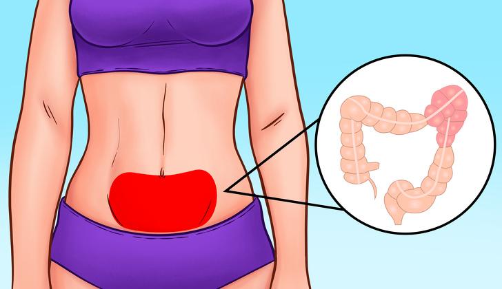 Vị trí đau bụng tiết lộ gì về sức khỏe của bạn?-4
