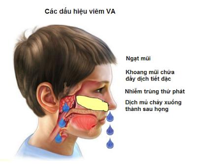 Viêm VA - Bệnh thường gặp ở trẻ em-1