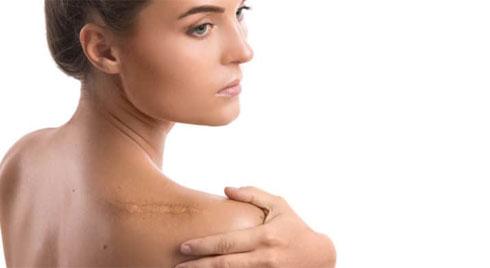 Ngăn ngừa vết sẹo, những điều nên và không nên
