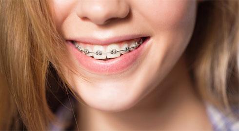 Những điều cần nhớ khi niềng răng để có hàm răng đẹp