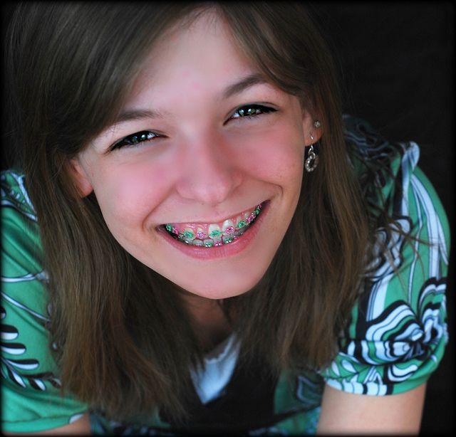 Những điều cần nhớ khi niềng răng để có hàm răng đẹp-1