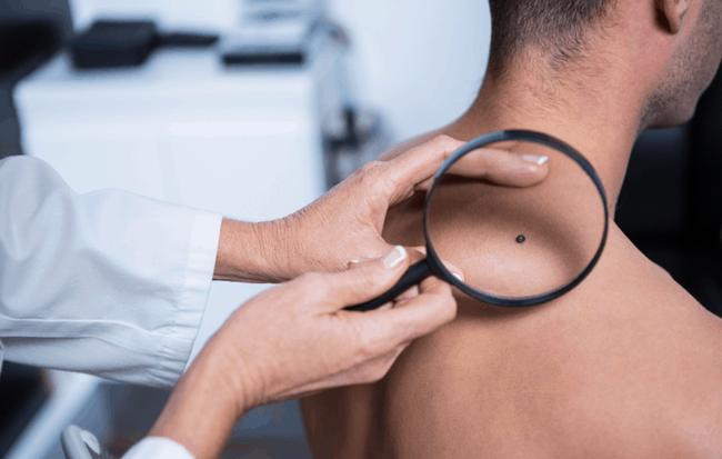 6 dấu hiệu cảnh báo ung thư da: Thấy vùng này trên cơ thể đổi màu hãy đi khám ngay còn kịp-3