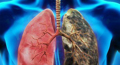 7 dấu hiệu sớm của ung thư phổi rất nhiều người bỏ qua, nguy hiểm nhất là số 5