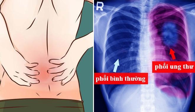 7 dấu hiệu sớm của ung thư phổi rất nhiều người bỏ qua, nguy hiểm nhất là số 5-3