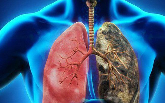 7 dấu hiệu sớm của ung thư phổi rất nhiều người bỏ qua, nguy hiểm nhất là số 5-1