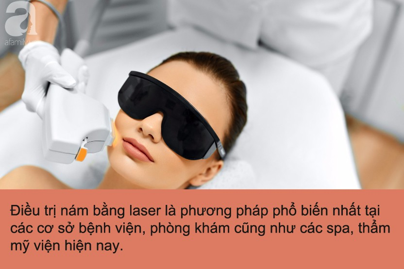 Trị nám bằng laser: Quy trình và những điều chị em không được bỏ qua mới mong trị nám thành công-2
