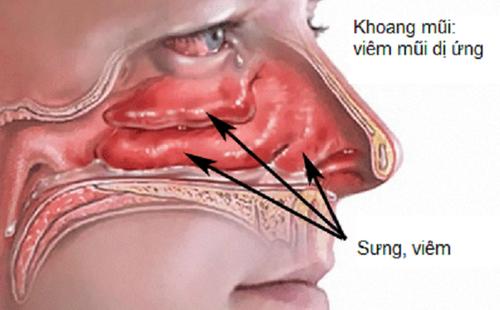 Điều cần chú ý khi bị viêm mũi dị ứng-2