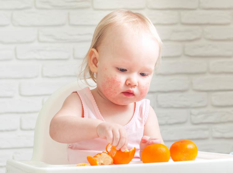 Chứng dị ứng ở trẻ nhỏ: Những điều phụ huynh cần chú ý-3