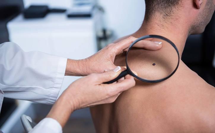 13 dấu hiệu cảnh báo ung thư ở nam giới không thể bỏ qua-3