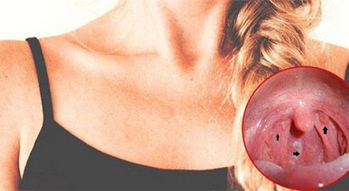 Ung thư thanh quản: Dấu hiệu nhận biết  nhiều người thường bỏ qua