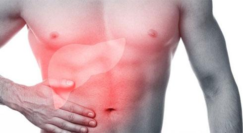 4 giai đoạn của bệnh xơ gan, tìm hiểu ngay trước khi quá muộn