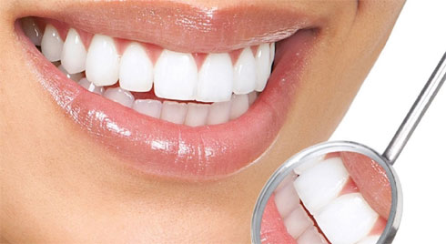 Bọc răng sứ: Đây là quy trình đầy đủ dành cho những ai muốn biết rõ phải tiến hành như thế nào
