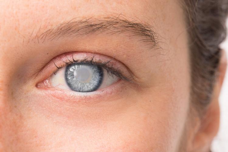 Các bệnh về mắt thường gặp mà bạn cần biết-3