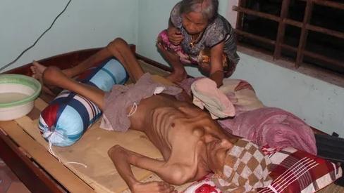 Tận cùng nỗi đau của người đàn ông đơn độc bị bệnh tật đọa đày gầy trơ xương