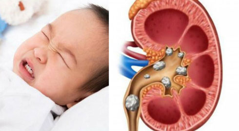 Bổ sung canxi không đúng cách, bé 20 tháng tuổi đái ra máu: Những lưu ý của bác sĩ