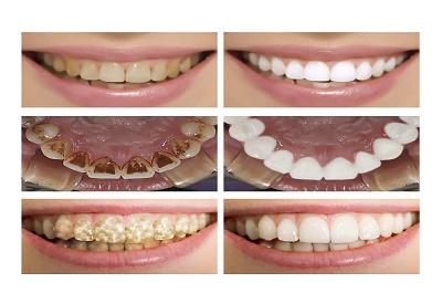 Cách làm trắng răng bị vàng trở nên trắng sáng cực kỳ tiết kiệm