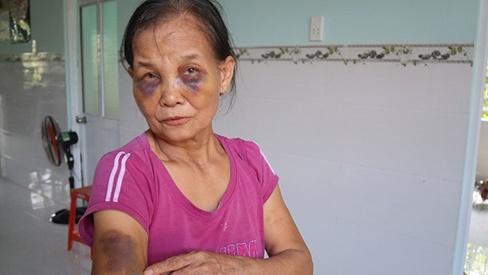 Nàng dâu mới sinh 3 tháng lên tiếng sau khi bị tố đánh mẹ chồng thâm tím mặt mày