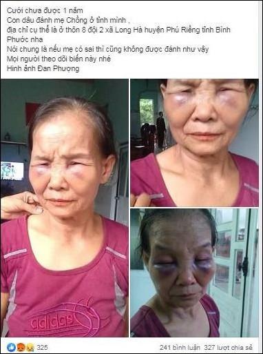Nàng dâu mới sinh 3 tháng lên tiếng sau khi bị tố đánh mẹ chồng thâm tím mặt mày-2