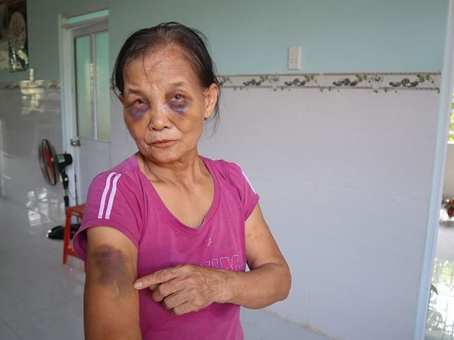 Nàng dâu mới sinh 3 tháng lên tiếng sau khi bị tố đánh mẹ chồng thâm tím mặt mày-1