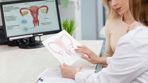 9 tình huống nên mổ khi mắc u nang buồng trứng