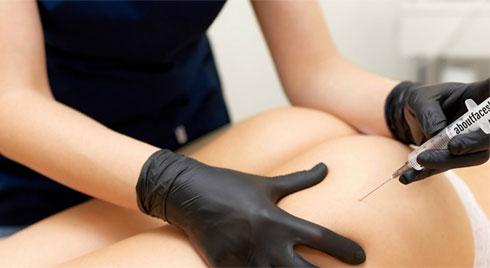 Tiêm filler nâng mông: Bác sĩ thẩm mỹ chỉ ra nguyên nhân vì sao chị em không nên