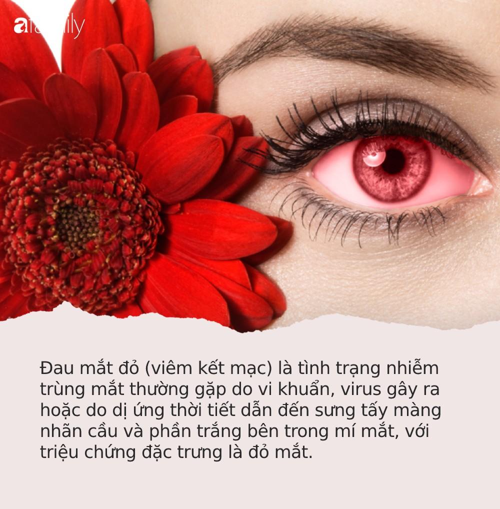 Đau mắt đỏ: Căn bệnh dễ lây mạnh, cần cảnh giác cao trong mùa hè này-1