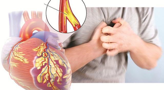 Nam diễn viên đột tử vì bệnh mạch vành, chuyên gia chỉ rõ ai có nguy cơ cao mắc bệnh?-2