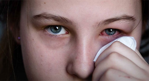 Đau mắt đỏ: Chớ dại làm 3 việc sau nếu không muốn bị loét giác mạc, mù vĩnh viễn