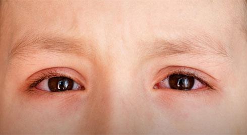Đau mắt đỏ có thể bùng phát trong mùa hè, muốn phòng bệnh hãy làm đủ 5 việc này mỗi ngày