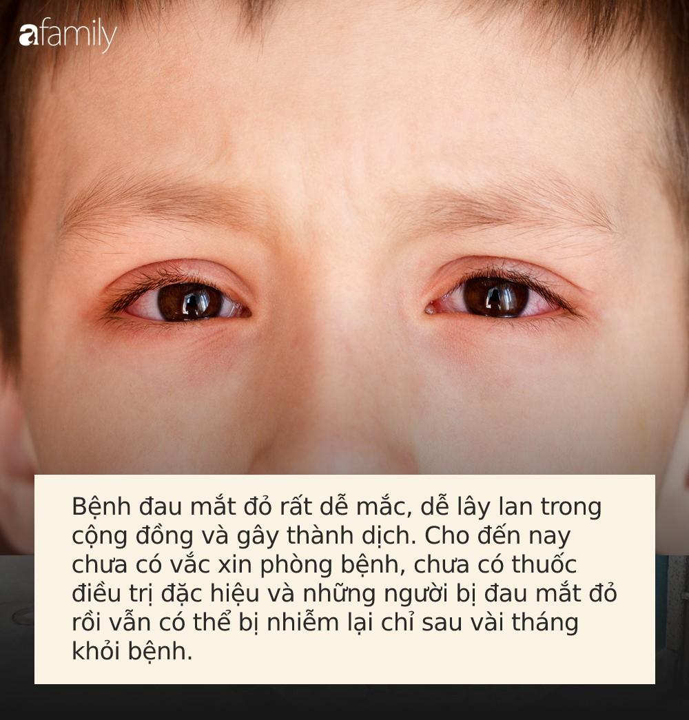 Đau mắt đỏ có thể bùng phát trong mùa hè, muốn phòng bệnh hãy làm đủ 5 việc này mỗi ngày-1