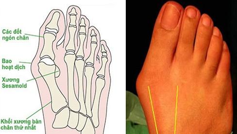 Đau khớp ngón chân là gì và cách chữa khỏi hiệu quả