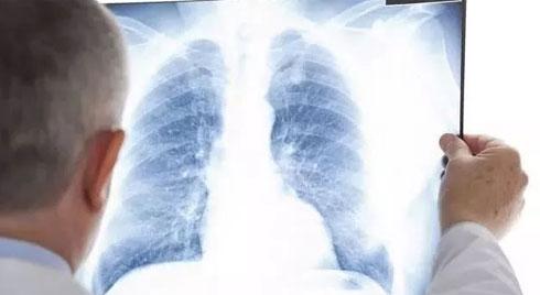 Chàng trai 18 tuổi mắc ung thư phổi dù không hút thuốc, uống rượu, bác sĩ chỉ ra những thủ phạm ít ai ngờ