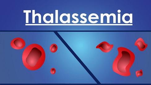 Bệnh tan máu bệnh bẩm sinh có nguy hiểm không?