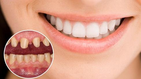 Lợi ích tuyệt vời của việc bọc răng sứ mang lại