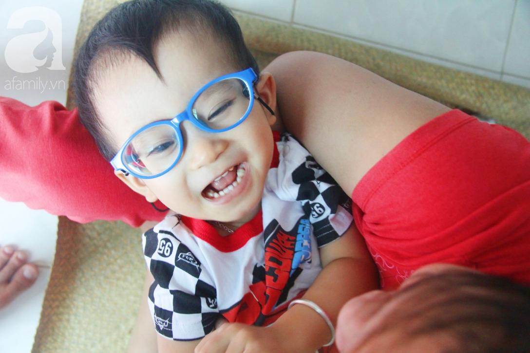 Sau 1 năm chạy chữa, bé Gia Anh đã hết kinh phí, người mẹ trẻ cầu xin mọi người giúp con trai thoát khỏi cảnh mù lòa-14