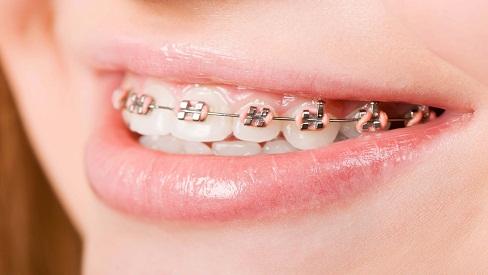 Những lưu ý không thể bỏ qua sau khi niềng răng