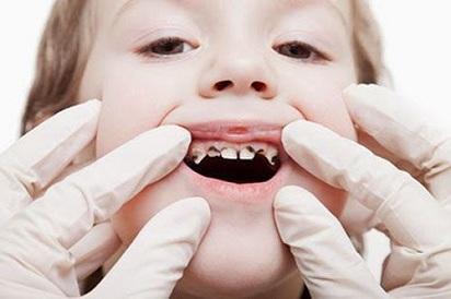 Nguyên nhân gây sún răng ở trẻ và cách phòng ngừa