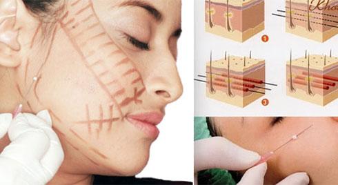 Ưu điểm – Nhược điểm của phương pháp căng da mặt bằng chỉ