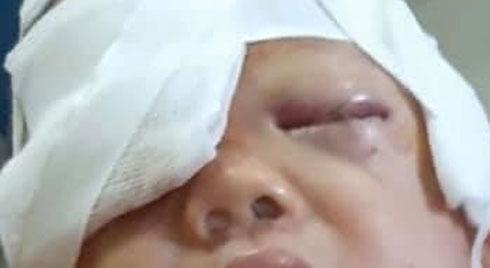 Bé trai 20 tháng tuổi gãy xương mũi, rách mặt vì bị chó nhà cắn