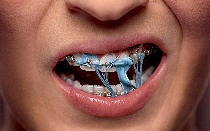 Những lưu ý không thể bỏ qua sau khi niềng răng-4