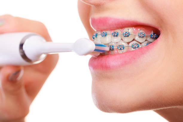 Những lưu ý không thể bỏ qua sau khi niềng răng-1