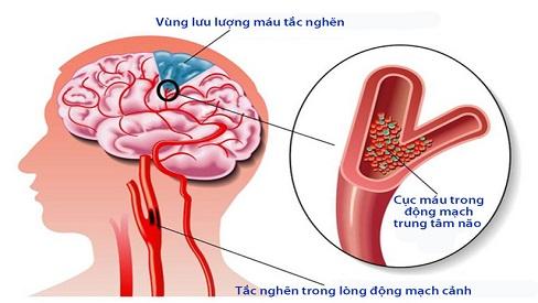 Nguyên nhân và triệu chứng bệnh thiếu máu não